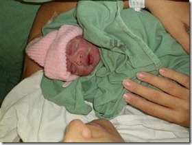 Giovanna bebê anencéfala